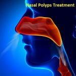Nasal Polyps Treatment Market