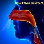 Nasal Polyps Treatment Market